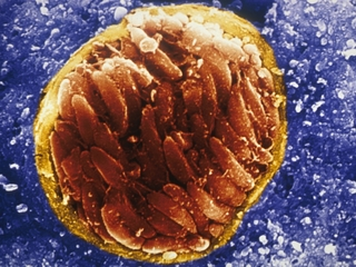 A brain parasite might be making us angrier