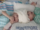 Mom holds once conjoined twin for first time