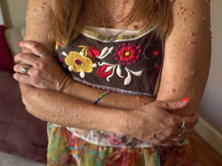 WATCH: Condition leaves woman with 6,000 tumors