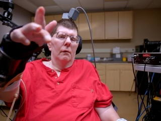 Man with quadriplegia moves arm on his own