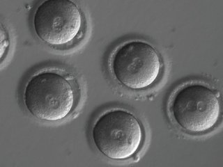 Researchers skeptical about gene-editing finding
