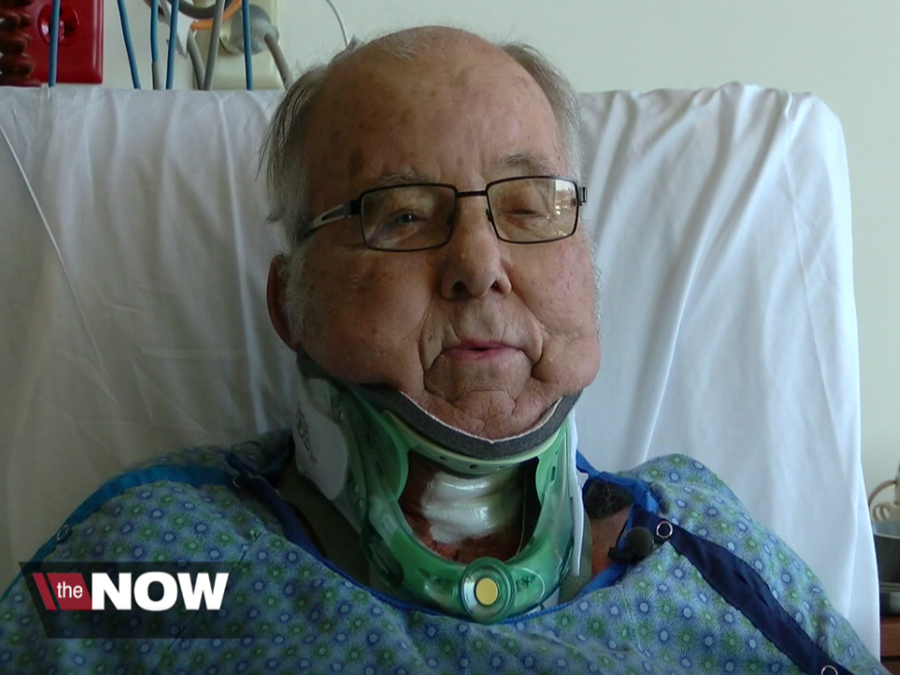 Surgery Gives Man Ability To Look Up After Decades