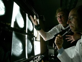 Body fat could be linked to breast cancer risk